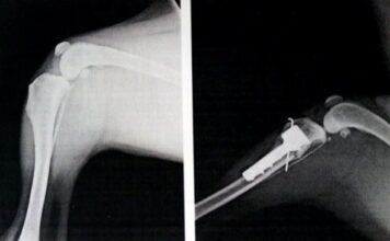 radiografia femur TTA